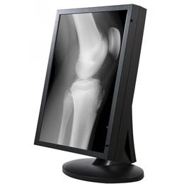 2MP放射科阅片显示器