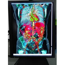 3MP放射科阅片显示器