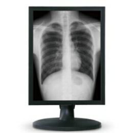 供应魔言2M放射科阅片显示器