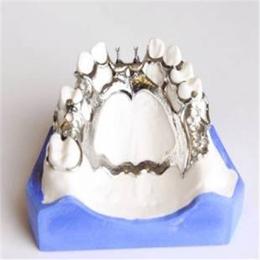 腾飞义齿  钛合金钢托缩略图
