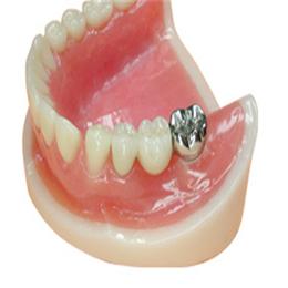 腾飞义齿 沟槽式附着体