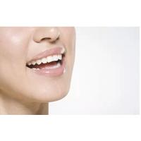 牙齿健康六大标准 你的牙齿健康吗?