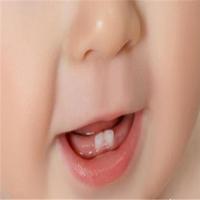宝宝的牙齿健康如何去保护